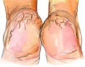 Cracked Heels and Heel Fissures | Causes and treatment options ...